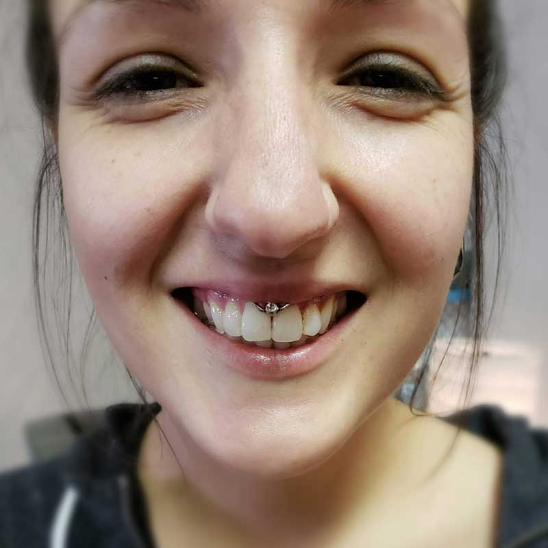 Smiley upper lip frenulum Piercing at Hippie Hoops and Holes Body Piercing studio, Nampa Idaho
